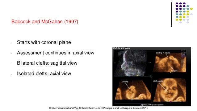 Babcock and McGahan (1997) - Starts with coronal plane - Assessment continues in axial view - Bilateral clefts: sagittal v...