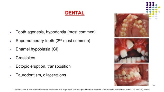 DENTAL  Tooth agenesis, hypodontia (most common)  Supernumerary teeth (2nd most common)  Enamel hypoplasia (CI)  Cross...
