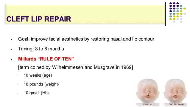 CLEFT LIP REPAIR 88 • Goal: improve facial aesthetics by restoring nasal and lip contour • Timing: 3 to 6 months • Millard...
