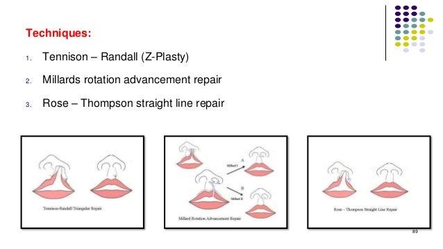 89 Techniques: 1. Tennison – Randall (Z-Plasty) 2. Millards rotation advancement repair 3. Rose – Thompson straight line r...