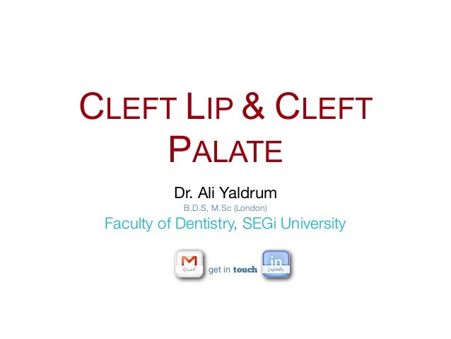 CLEFT LIP & CLEFT    PALATE           Dr. Ali Yaldrum             B.D.S, M.Sc (London) Faculty of Dentistry, SEGi Universi...
