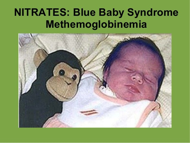 "blue baby syndrome Water-related diseases methaemoglobinemia but show signs of blueness around the mouth, hands, and feet, hence the common name ""blue baby syndrome."