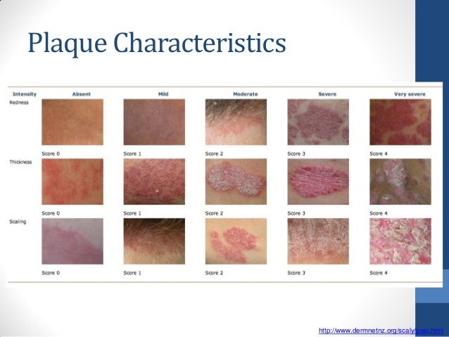 methotrexate psoriasis results