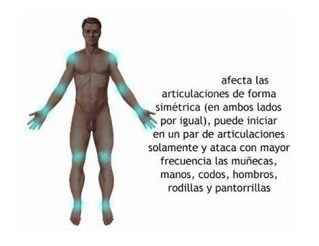 Artritis Reumatoidea. Clínica, Diagnostico y Laboratorio Slide 2