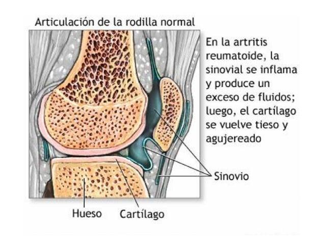 Artritis Reumatoidea. Clínica, Diagnostico y Laboratorio Slide 3