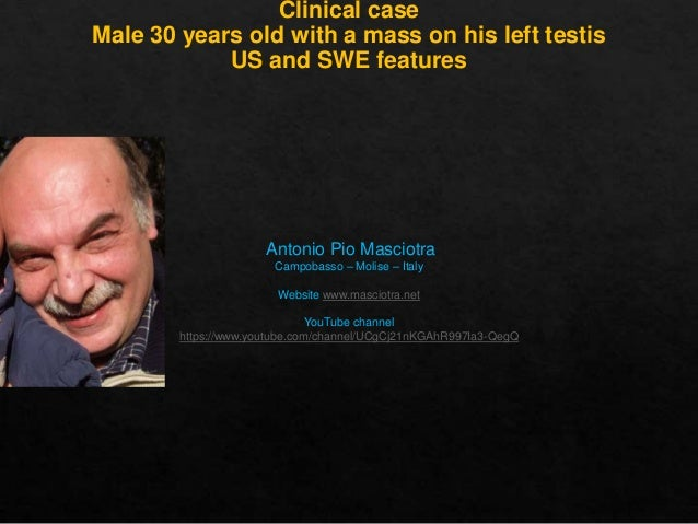 Clinical case Male 30 years old with a mass on his left testis US and SWE features  Antonio Pio Masciotra Campobasso – Mol...