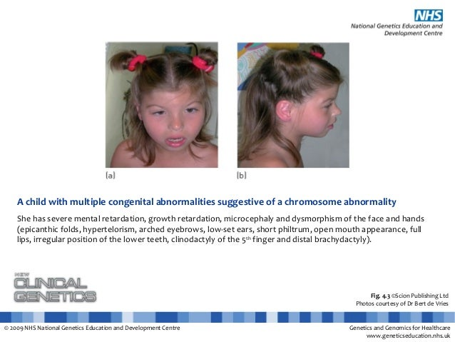 Clinical Photos - Chromosome structure abnormality
