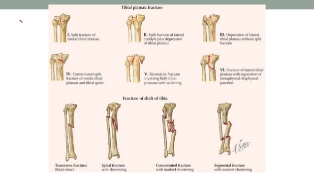 Lower limb - Clinical anatomy