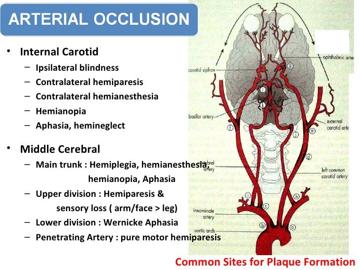 Clinical Anatomy Circle Of Willis & Cavernous Sinus