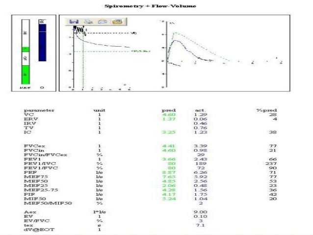 Clinical application of pulmonary function tests.pptm1