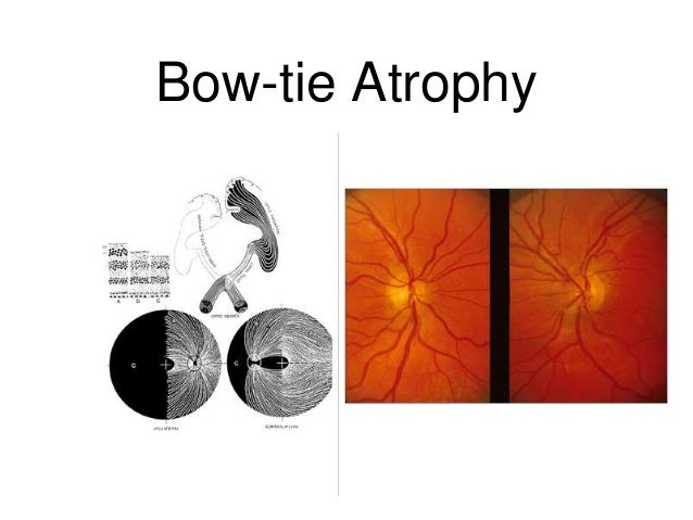 Clinical approach to acute vision loss