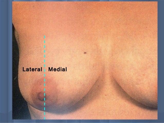 Bb lump on breast