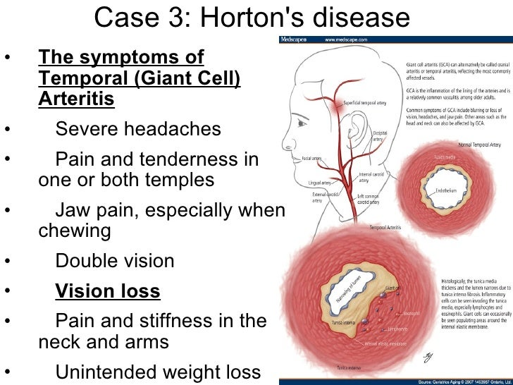 HortonS Syndrome