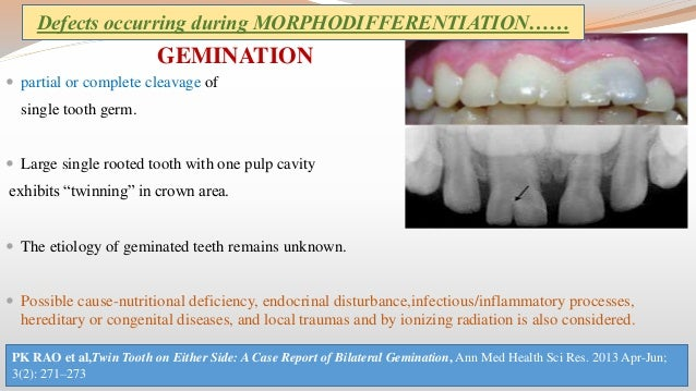clinical consideration in tooth development eruption and