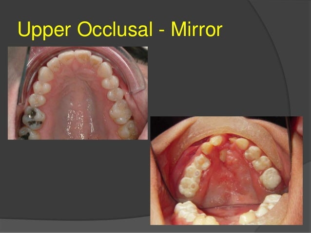 Clinical digital photography in orthodontics