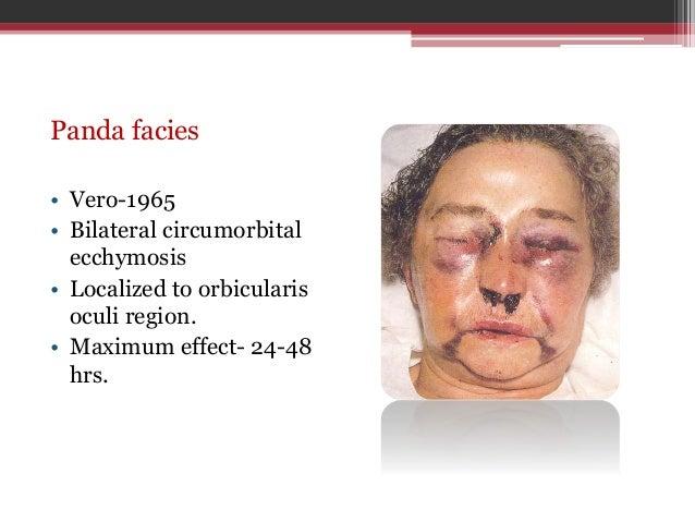 Evaluate facial trauma