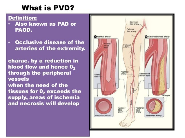 Clinical examination peripheral vascular disease