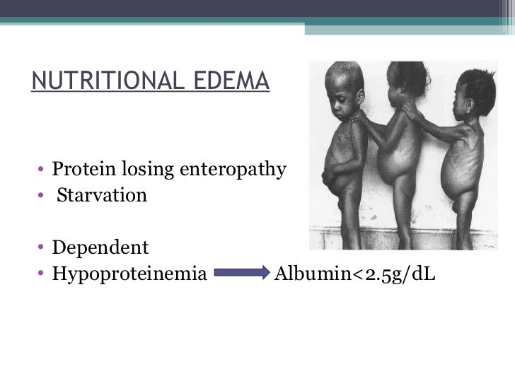 Protein Losing Enteropathy Nsaids | All About Ketogenic Diet
