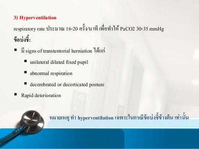 Nolvadex without prescriptions