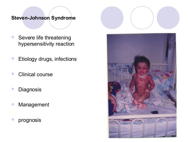 Clinical Presentation Of Some Peds Disorders