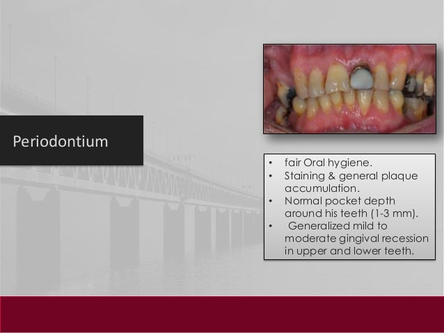 dental hygiene case studies Dental hygiene academy, inccase study board review for nbdhe (hygiene), and nbde (dental) exams brought to you by andyrdh, valerierdh and various dental hygiene faculty nationwidewith this app, you will rock on the board examdental hygiene case studiesthis app is the only app for case studies available in the world.