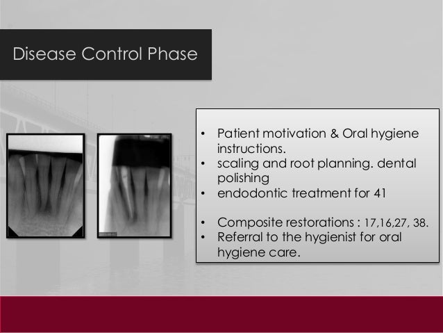 Dental clinical case presentation treatment procedures 17 pronofoot35fo Images