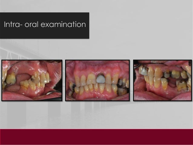 dental case presentation When dentists finish dental school, there is a sense of excitement they are glad they gained outstanding clinical skills and look forward to entering private practice.