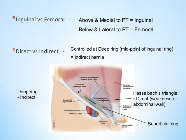 Direct and indirect inguinal hernia anatomy