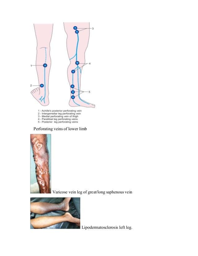 Perforating veins of lower limb Varicose vein leg of great/long saphenous vein Lipodermatosclerosis left leg.