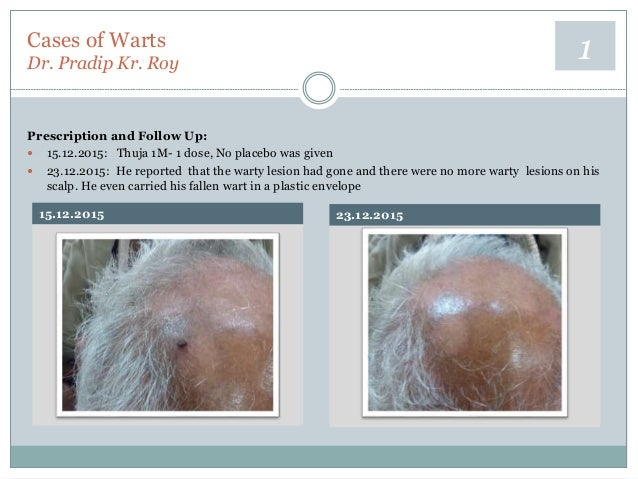 Clinical tips for the homoepathic treatment of warts