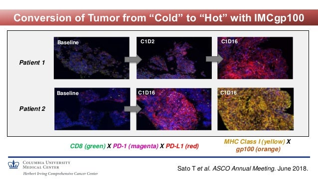 """Conversion of Tumor from """"Cold"""" to """"Hot"""" with IMCgp100 Baseline C1D2 C1D16 CD8 (green) X PD-1 (magenta) X PD-L1 (red) Base..."""