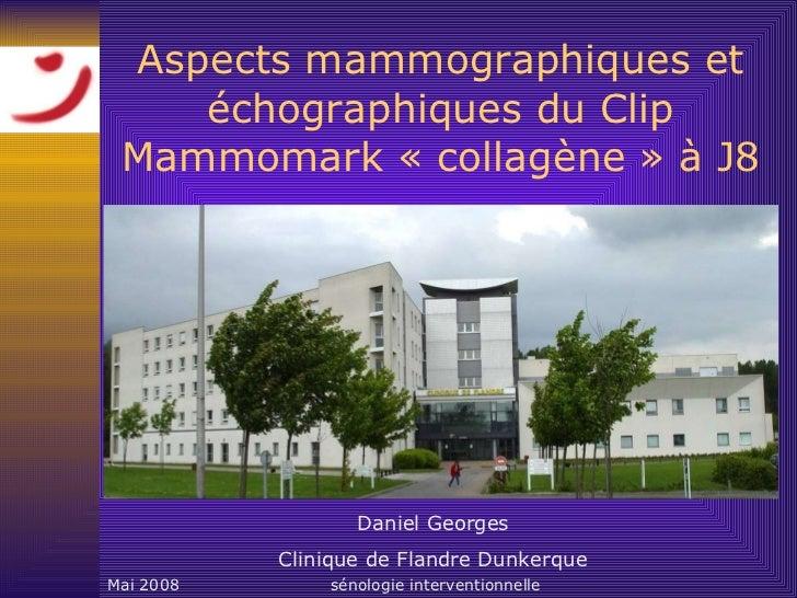 Aspects mammographiques et échographiques du Clip Mammomark «collagène» à J8 Daniel Georges Clinique de Flandre Dunkerque