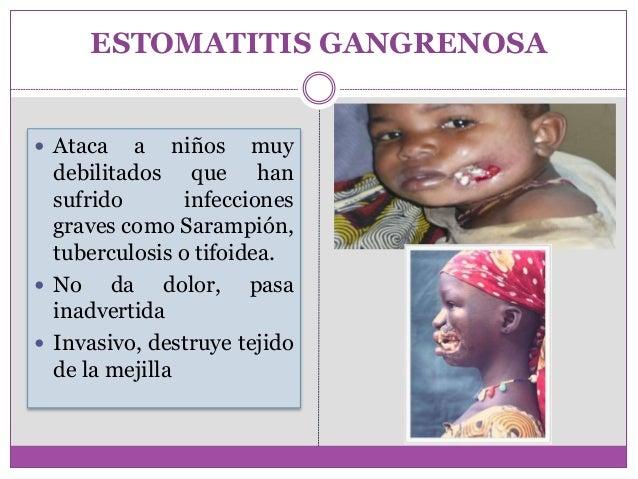ESTOMATITIS GANGRENOSA PDF