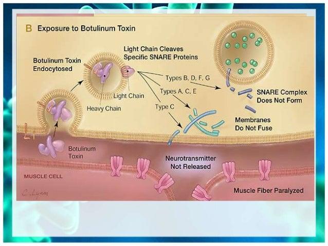 clostridium botulinum toxin