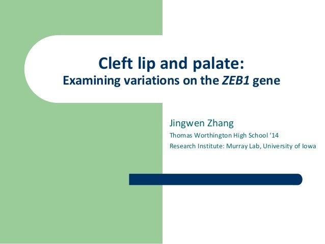 Cleft lip and palate:Examining variations on the ZEB1 gene                  Jingwen Zhang                  Thomas Worthing...