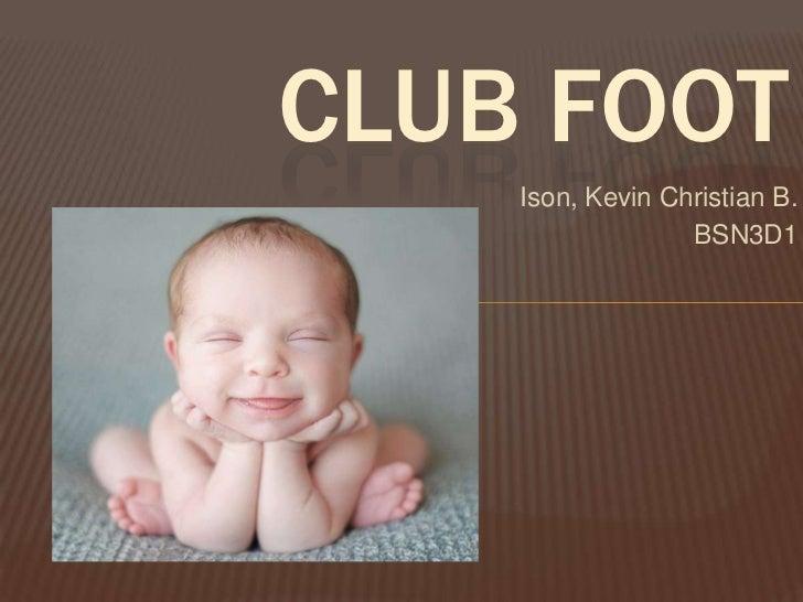 CLUB FOOT    Ison, Kevin Christian B.                  BSN3D1