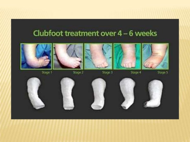    Stimulate movement of toes to promote circulation.   Insert plastic petals over the top edges of a new cast while it ...