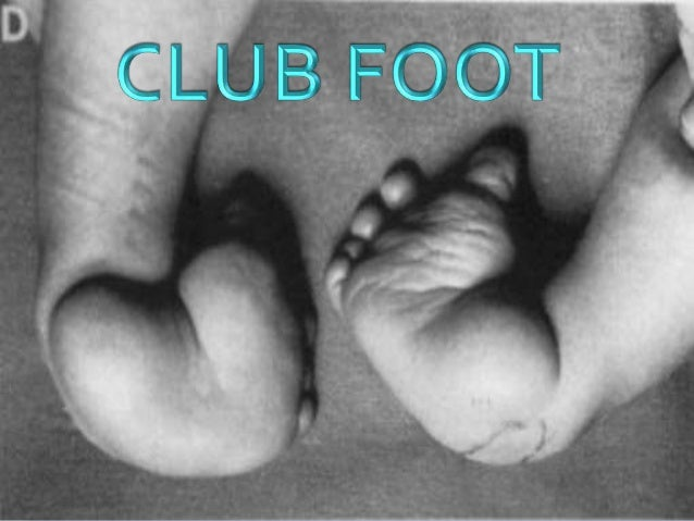 CLUBFOOT  VAGUETERM USEDTO DESCRIBE A NUMBER OF DIFFERENTABNORMALITIES INTHE SHAPE OFTHE FOOT  NOW IT HAS COMETO BE SYNO...
