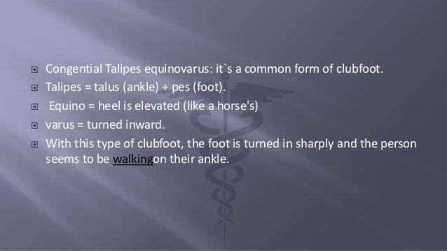 Club foot Slide 2