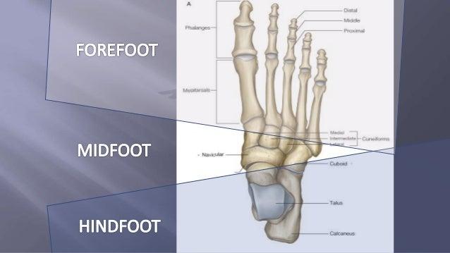 Club foot Slide 3