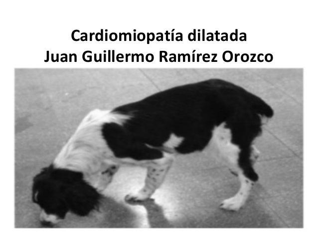 Cardiomiopatía dilatada Juan Guillermo Ramírez Orozco