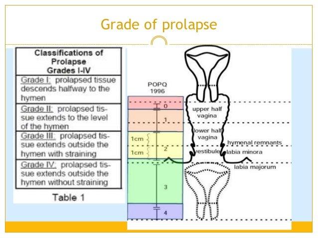 Woman Health-Incontine... Uterine Prolapse Grades