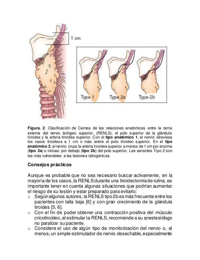 Figura. 2. Clasificación de Cernea de las relaciones anatómicas entre la rama externa del nervio laríngeo superior, (RENLS...
