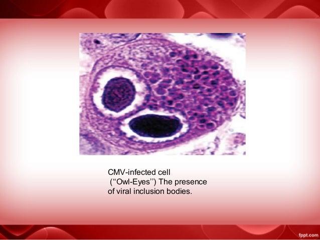 Cmv presentation 1 Owl Eye Inclusion