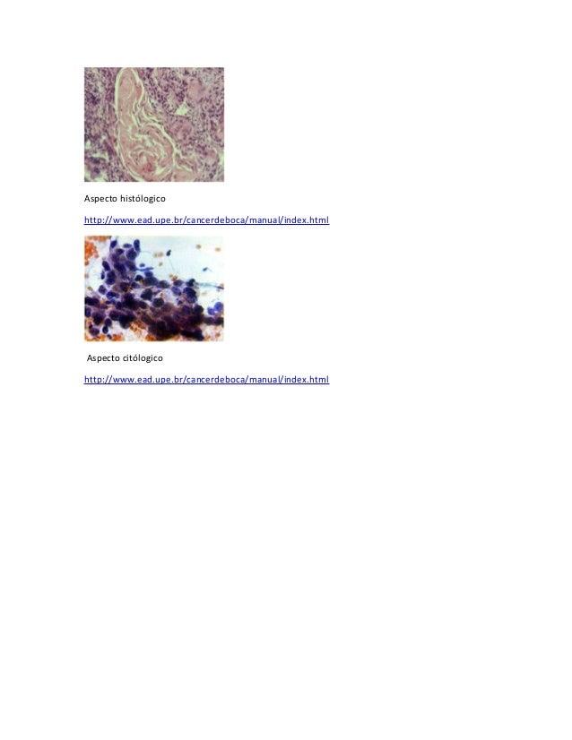 Aspecto histólogicohttp://www.ead.upe.br/cancerdeboca/manual/index.htmlAspecto citólogicohttp://www.ead.upe.br/cancerdeboc...