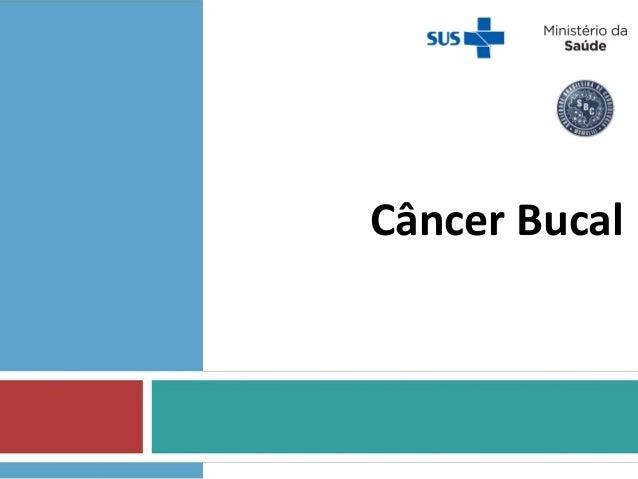 Câncer Bucal