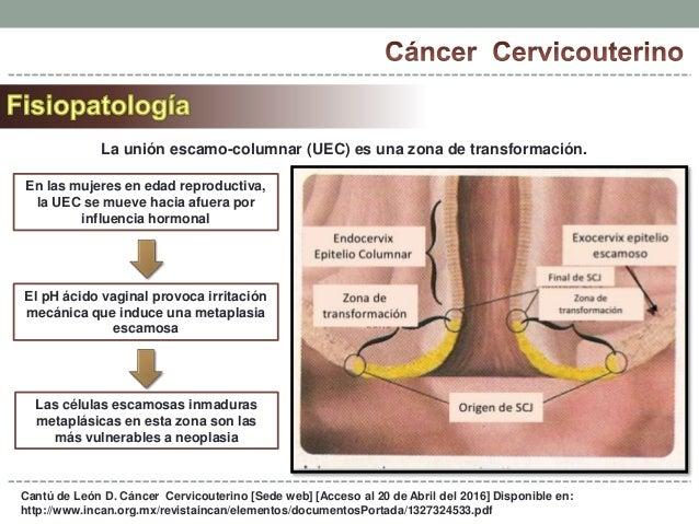 Prevenci n y detecci n temprana del c ncer de cuello uterino