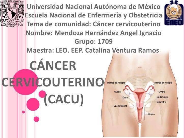CÁNCER  CERVICOUTERINO  (CACU) Universidad Nacional Autónoma de México Escuela Nacional de Enfermería y Obstetricia Tema d...