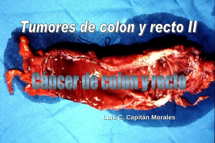 Luis C. Capitán Morales Tumores de colon y recto II Cáncer de colon y recto