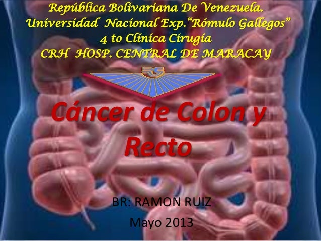 """Cáncer de Colon yRectoBR: RAMON RUIZMayo 2013República Bolivariana De Venezuela.Universidad Nacional Exp.""""Rómulo Gallegos""""..."""